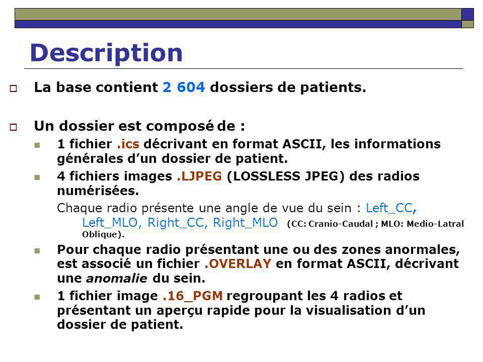 Description Le fichier.ics (Exemple : B-3024-1.ics) ics_version 1.0 filename B-3024-1 DATE_OF_STUDY 2 7 1995 PATIENT_AGE 42 FILM FILM_TYPE REGULAR DENSITY 4 DATE_DIGITIZED 7 22 1997 DIGITIZER LUMISYS SELECTED LEFT_CC LINES 4696 PIXELS_PER_LINE 3024 BITS_PER_PIXEL 12 RESOLUTION 50 NON-OVERLAY LEFT_MLO LINES 4688 PIXELS_PER_LINE 3048 BITS_PER_PIXEL 12 RESOLUTION 50 OVERLAY RIGHT_CC LINES 4624 PIXELS_PER_LINE 3056 BITS_PER_PIXEL 12 RESOLUTION 50 NON-OVERLAY RIGHT_MLO LINES 4664 PIXELS_PER_LINE 3120 BITS_PER_PIXEL 12 RESOLUTION 50 OVERLAY Anomalie détectée dans la radio B_3024_1.RIGHT_MLO.LJPEG B_3024_1.RIGHT_MLO.OVERLAY
