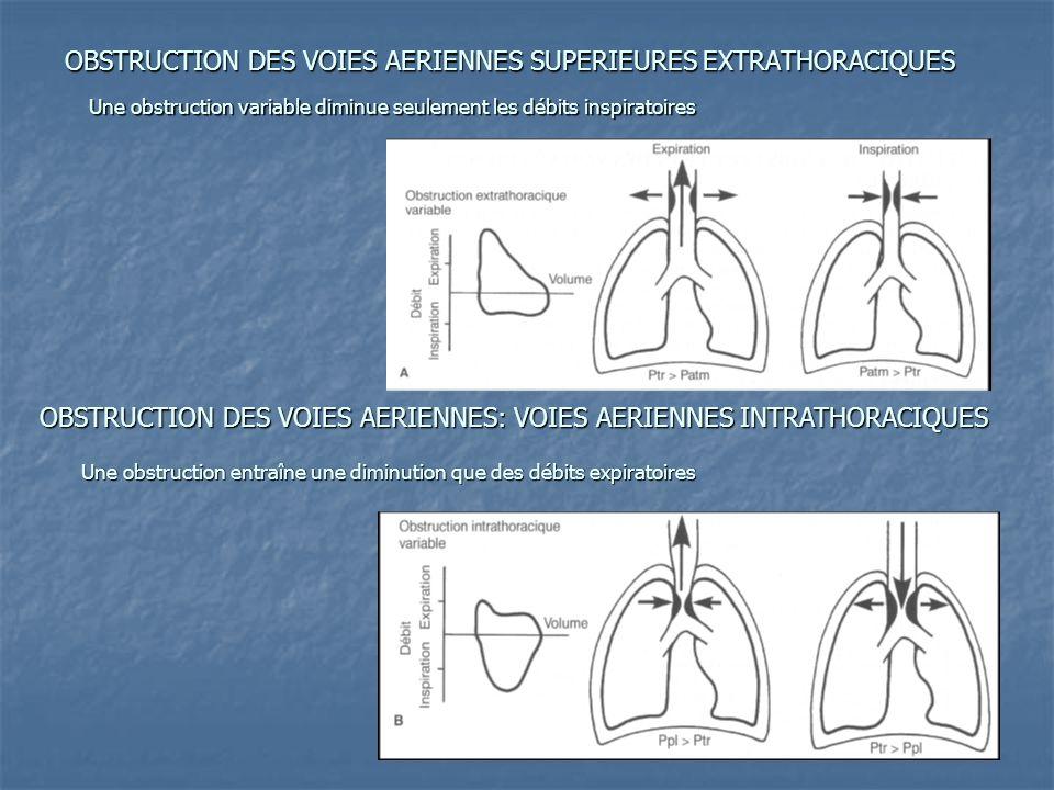 OBSTRUCTION DES VOIES AERIENNES SUPERIEURES EXTRATHORACIQUES OBSTRUCTION DES VOIES AERIENNES: VOIES AERIENNES INTRATHORACIQUES Une obstruction variabl