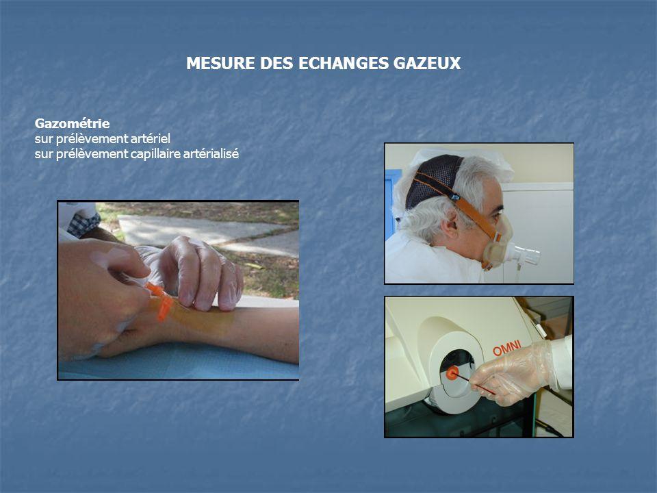 Gazométrie sur prélèvement artériel sur prélèvement capillaire artérialisé