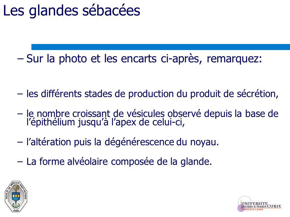 Les glandes sébacées –Sur la photo et les encarts ci-après, remarquez: –les différents stades de production du produit de sécrétion, –le nombre croiss