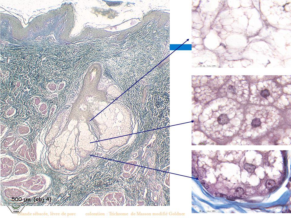 Glande sébacée, lèvre de porccoloration : Trichrome de Masson modifié Goldner