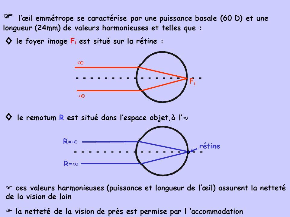 l œil amétrope ( étymologie mal proportionné ) ne présente pas son F i sur la rétine et son R à l les amétropies peuvent être : pures ( amétropies sphériques) ou associées à un astigmatisme 1.Définition et caractéristiques des amétropies œil de puissance basale trop forte, parce que : 1.1.myopie : - soit trop puissant pour sa longueur - soit trop long pour sa puissance foyer image F i : sur l axe optique, en avant de la rétine image rétinienne de l : cercle ou tache de diffusion FiFi