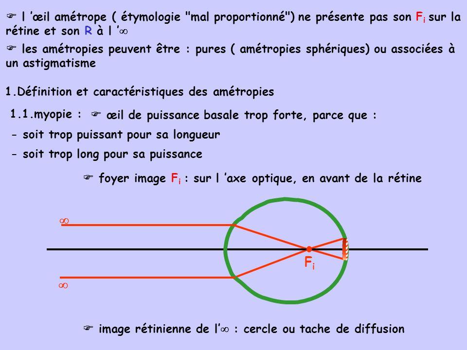 rémotum R : sur l axe optique, en avant de l œil, à distance finie et non à linfini R la position de R conditionne le degré de myopie : 2 mètres - 0,5 D - 1 D 1 mètre degré de myopieposition de R en avant de l oeil - 2 D 0,5 mètre