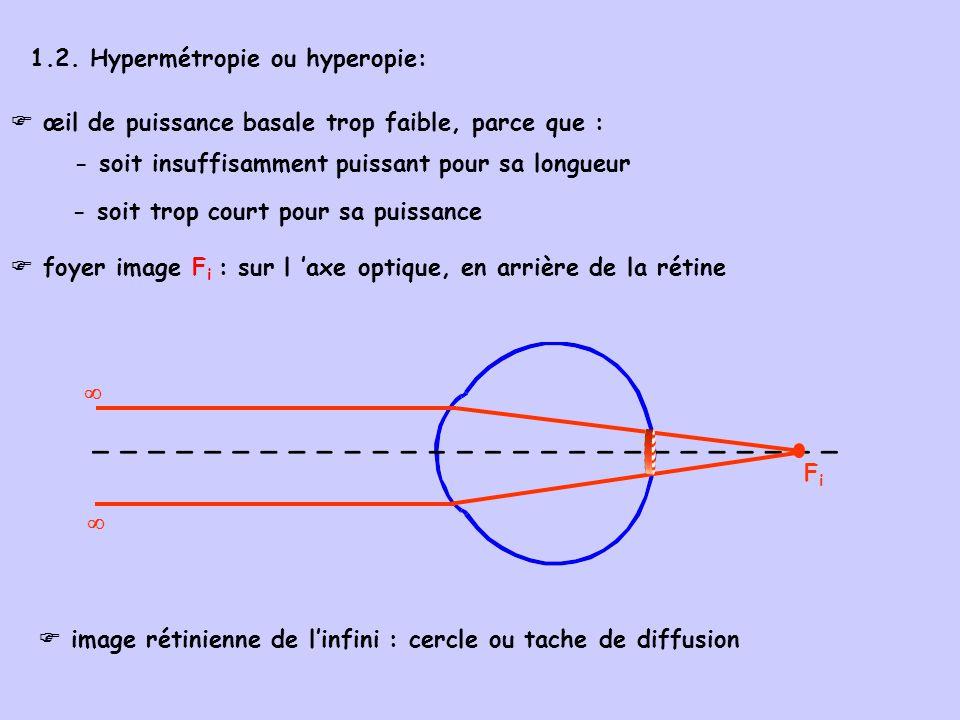 rémotum R: - sur laxe optique en arrière de l œil, à distance finie, virtuel rémotum R: a tourné au delà de linfini , pour venir en arrière de loeil la position de R conditionne le degré dhypermétropie : - virtuel, car construction graphique du prolongement en arrière de l œil des rayons réfractés) R virtuel position de R en arrière de loeil degré d hypermétropie 2 mètres + 0,5 D 1 mètre + 1 D 0,5 mètre + 2 D