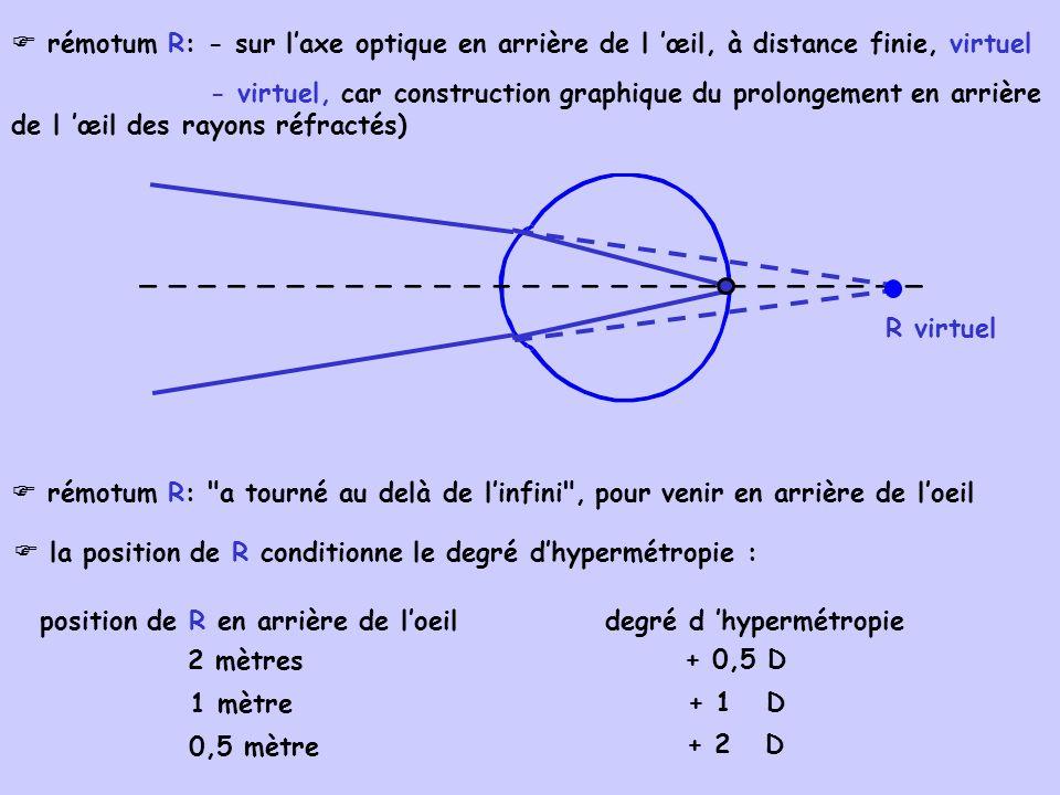 trop long : œil myope 2.Causes et origines des amétropies sphériques : puissance basale et longueur de lœil de valeurs mal proportionnées : amétropies de conformation 2.1.amétropies axiles : puissance normale (60 D), longueur en cause longueur normale (24 mm) : œil emmétrope trop court : œil hyperope 2.2.amétropies de puissance : longueur normale, puissance en cause puissance d un dioptre sphérique : D =