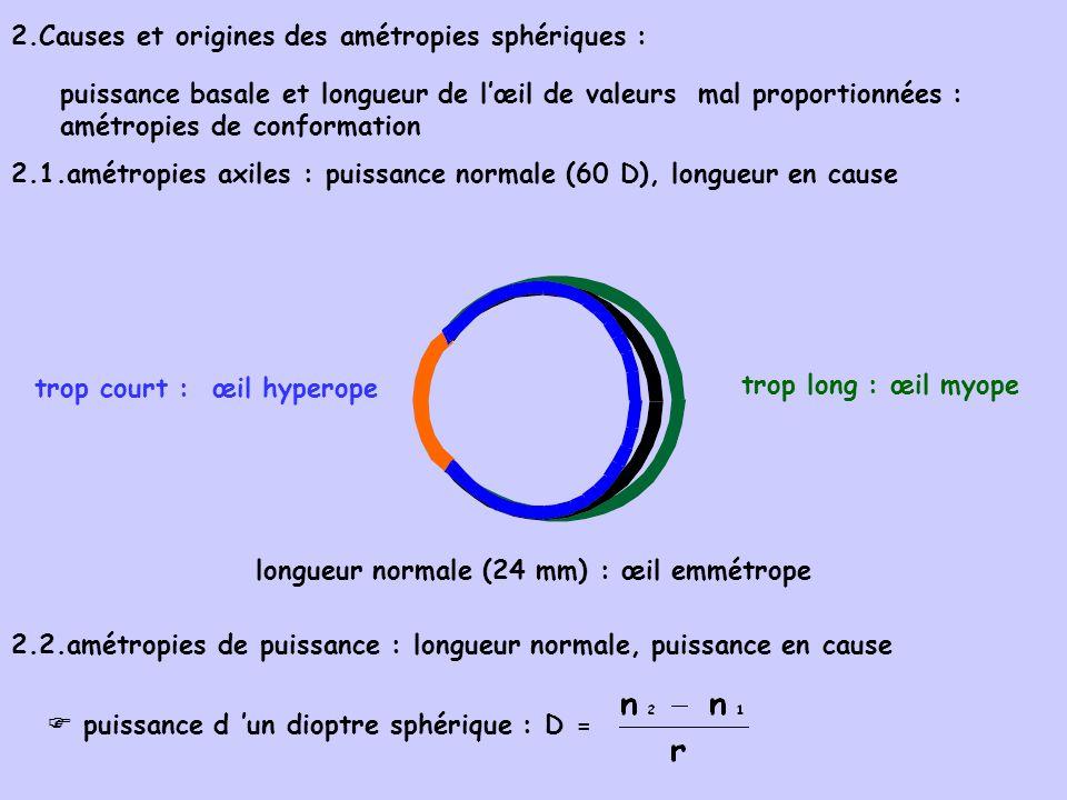2.1.1 amétropies de courbure : r de courbure en cause (cornée concernée) r normal 7,8 mm : emmétrope 2.1.2 amétropies d indice : n en cause (cristallin essentiellement) n augmenté : myopie (ex:cataracte débutante) n diminué : hyperopie (cas extrême : aphakie : absence de cristallin) r diminué : myopie de courbure (souvent astigmatisme associé) r augmenté : hypermétropie de courbure (souvent astigmatisme associé)