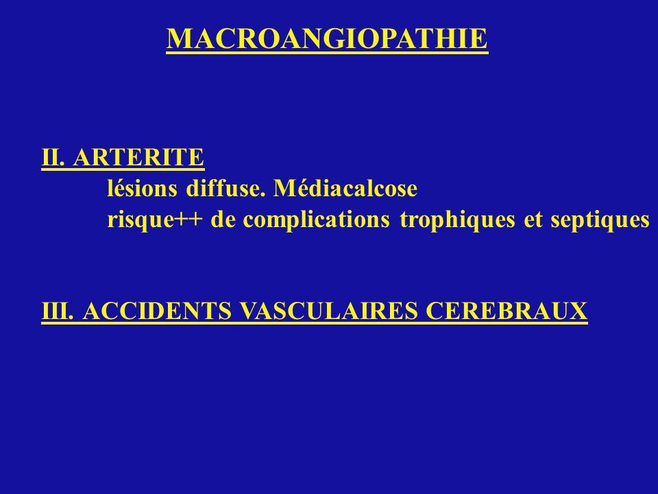 MACROANGIOPATHIE II. ARTERITE lésions diffuse. Médiacalcose risque++ de complications trophiques et septiques III. ACCIDENTS VASCULAIRES CEREBRAUX