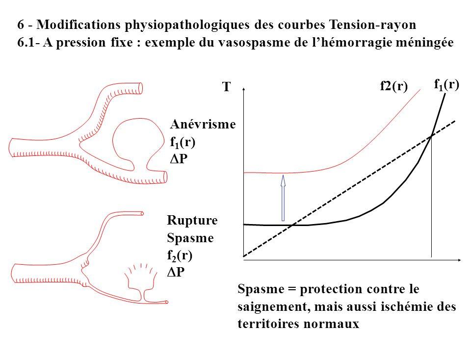 6 - Modifications physiopathologiques des courbes Tension-rayon 6.1- A pression fixe : exemple du vasospasme de lhémorragie méningée Anévrisme f 1 (r)