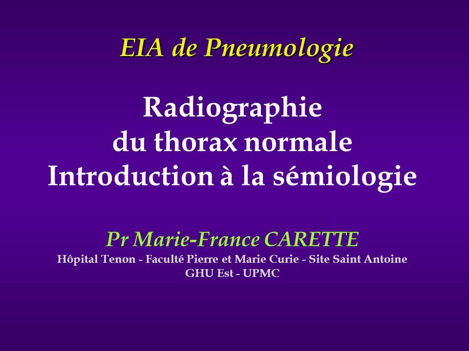 Radiographie du thorax normale Introduction à la sémiologie Pr Marie-France CARETTE Hôpital Tenon - Faculté Pierre et Marie Curie - Site Saint Antoine