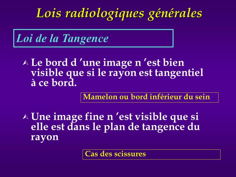 Lois radiologiques générales Ù Le bord d une image n est bien visible que si le rayon est tangentiel à ce bord. Ù Une image fine n est visible que si