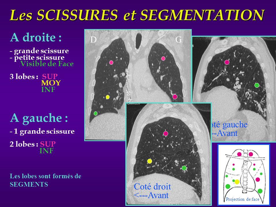 Les SCISSURES et SEGMENTATION A droite : - grande scissure - petite scissure Visible de Face 3 lobes : SUP MOY INF A gauche : - 1 grande scissure 2 lo