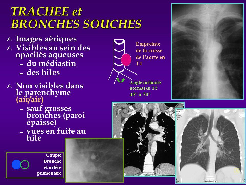 TRACHEE et BRONCHES SOUCHES Ù Images aériques Ù Visibles au sein des opacités aqueuses du médiastin des hiles Ù Non visibles dans le parenchyme (air/a