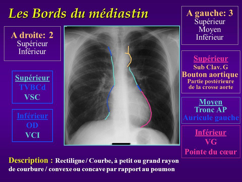 Les Bords du médiastin Supérieur TVBCd VSC Supérieur Sub Clav. G Bouton aortique Partie postérieure de la crosse aorte Moyen Tronc AP Auricule gauche
