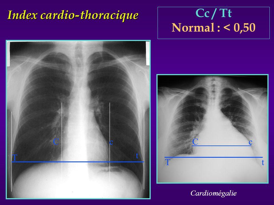 Index cardio-thoracique Cc / Tt Normal : < 0,50 T t C c Cardiomégalie C c T t