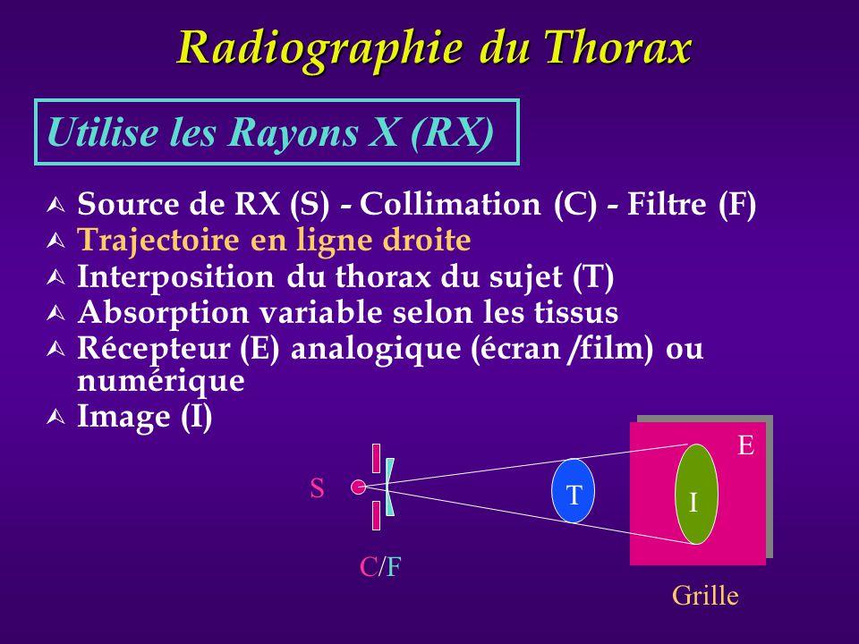 Radiographie du Thorax Ù Source de RX (S) - Collimation (C) - Filtre (F) Ù Trajectoire en ligne droite Ù Interposition du thorax du sujet (T) Ù Absorp