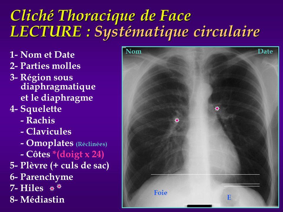 Cliché Thoracique de Face LECTURE : Systématique circulaire 1- Nom et Date 2- Parties molles 3- Région sous diaphragmatique et le diaphragme 4- Squele
