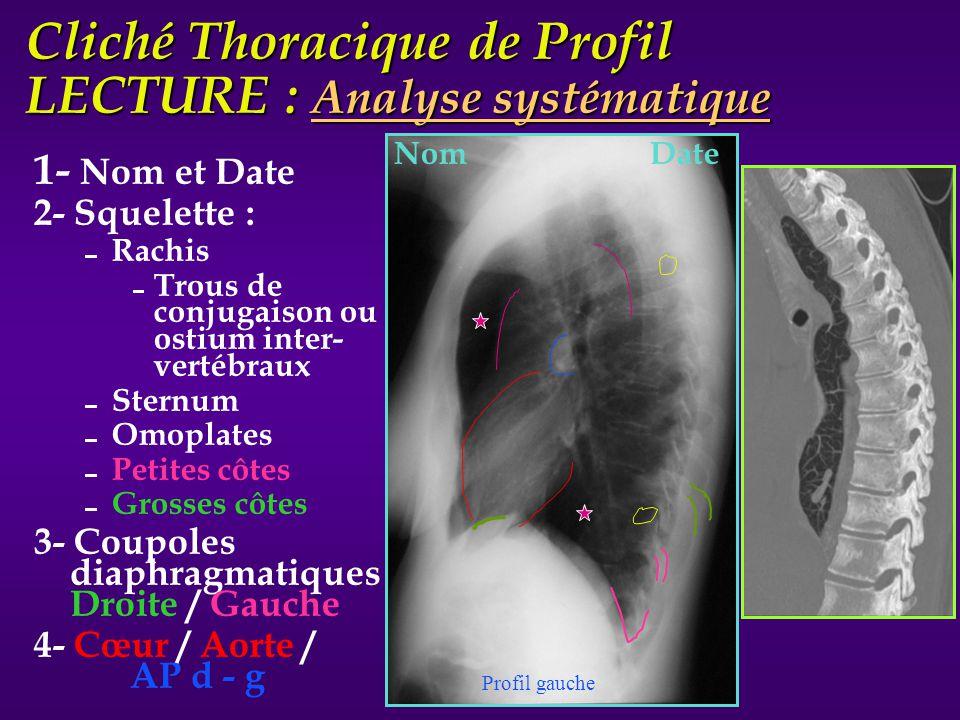 Cliché Thoracique de Profil LECTURE : Analyse systématique 1- Nom et Date 2- Squelette : Rachis Trous de conjugaison ou ostium inter- vertébraux Stern