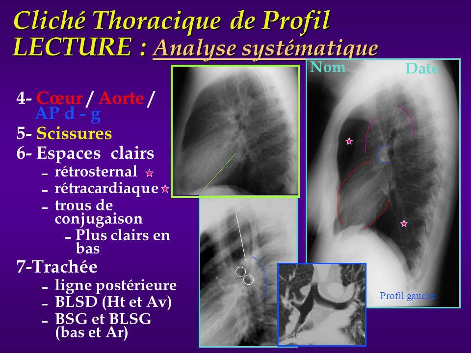 Cliché Thoracique de Profil LECTURE : Analyse systématique 4- Cœur / Aorte / AP d - g 5- Scissures 6- Espaces clairs rétrosternal rétracardiaque trous