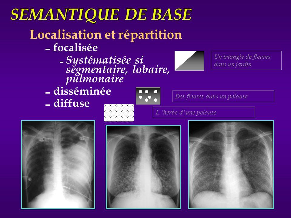 SEMANTIQUE DE BASE Localisation et répartition focalisée Systématisée si segmentaire, lobaire, pulmonaire disséminée diffuse Un triangle de fleures da