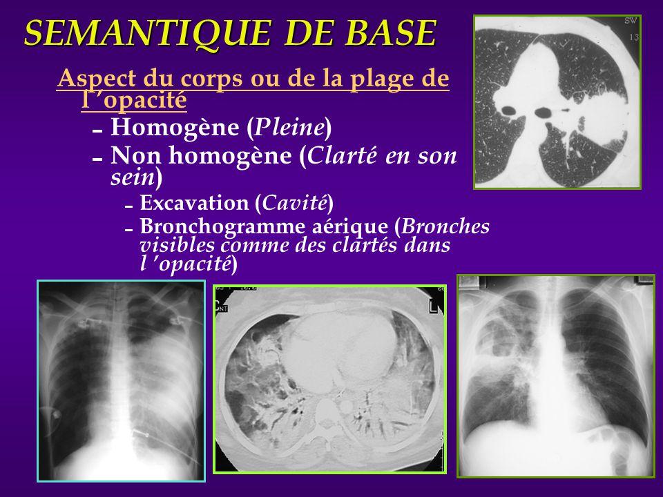 SEMANTIQUE DE BASE Aspect du corps ou de la plage de l opacité Homogène ( Pleine ) Non homogène ( Clarté en son sein ) Excavation ( Cavité ) Bronchogr
