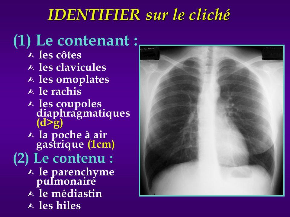 IDENTIFIER sur le cliché (1) Le contenant : Ù les côtes Ù les clavicules Ù les omoplates Ù le rachis Ù les coupoles diaphragmatiques (d>g) Ù la poche