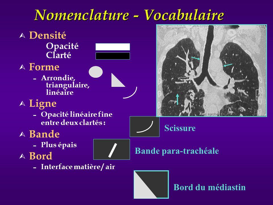 SEMANTIQUE DE BASE Aspect du corps ou de la plage de l opacité Homogène ( Pleine ) Non homogène ( Clarté en son sein ) Excavation ( Cavité ) Bronchogramme aérique ( Bronches visibles comme des clartés dans l opacité )