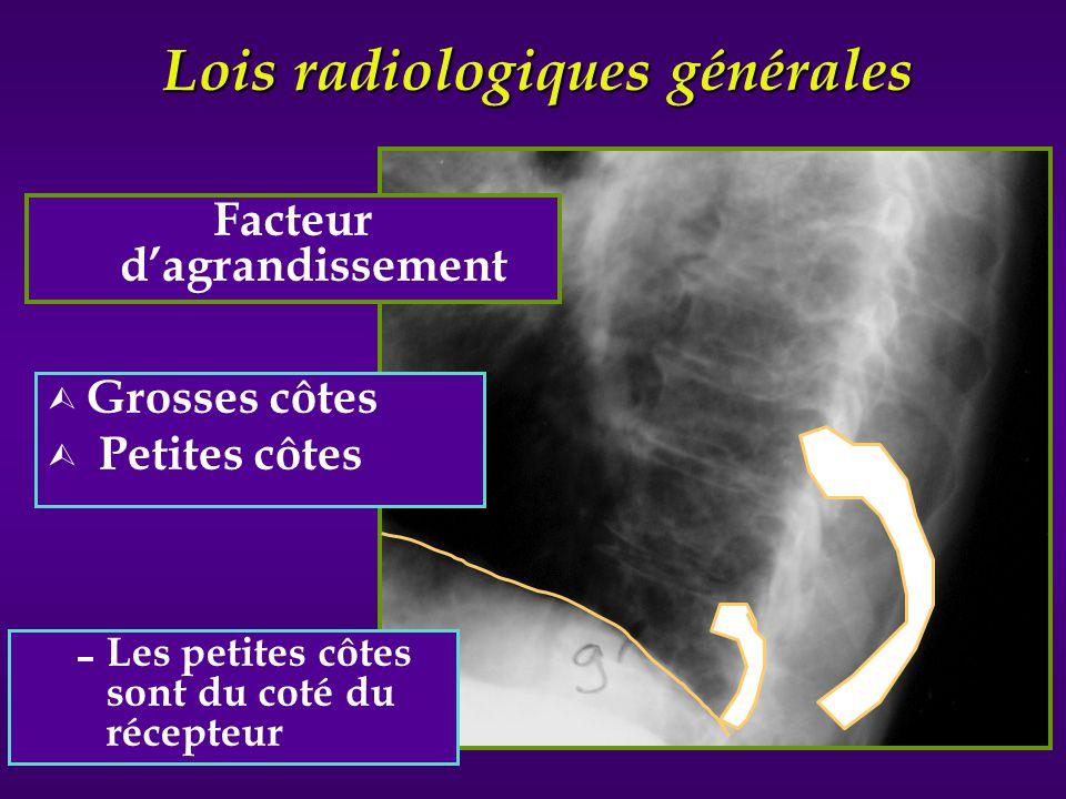 Lois radiologiques générales Ù Grosses côtes Ù Petites côtes Facteur dagrandissement Les petites côtes sont du coté du récepteur