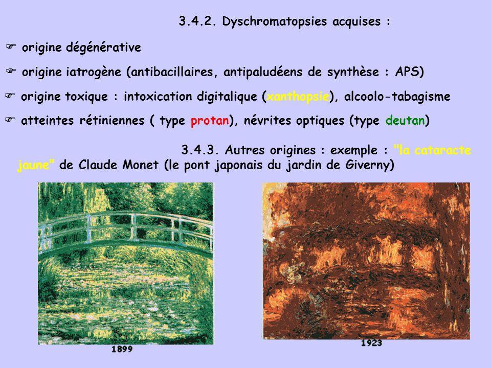 3.4.2. Dyschromatopsies acquises : origine dégénérative origine iatrogène (antibacillaires, antipaludéens de synthèse : APS) origine toxique : intoxic