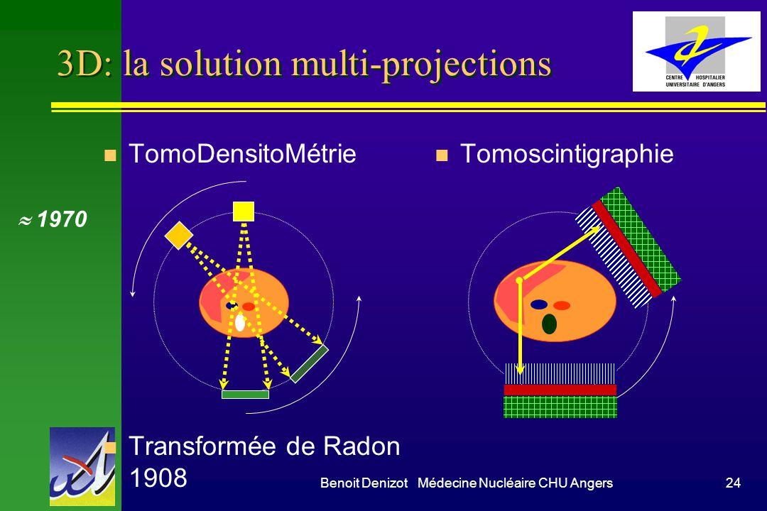 Benoit Denizot Médecine Nucléaire CHU Angers24 3D: la solution multi-projections n TomoDensitoMétrie n Transformée de Radon 1908 n Tomoscintigraphie 1
