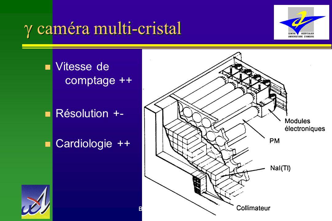 Benoit Denizot Médecine Nucléaire CHU Angers27 caméra multi-cristal n Vitesse de comptage ++ n Résolution +- n Cardiologie ++