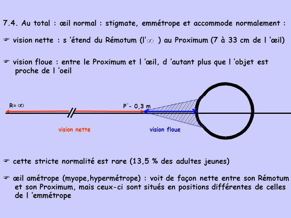 7.4. Au total : œil normal : stigmate, emmétrope et accommode normalement : R= vision nette P ˜ - 0,3 m vision floue vision nette : s étend du Rémotum
