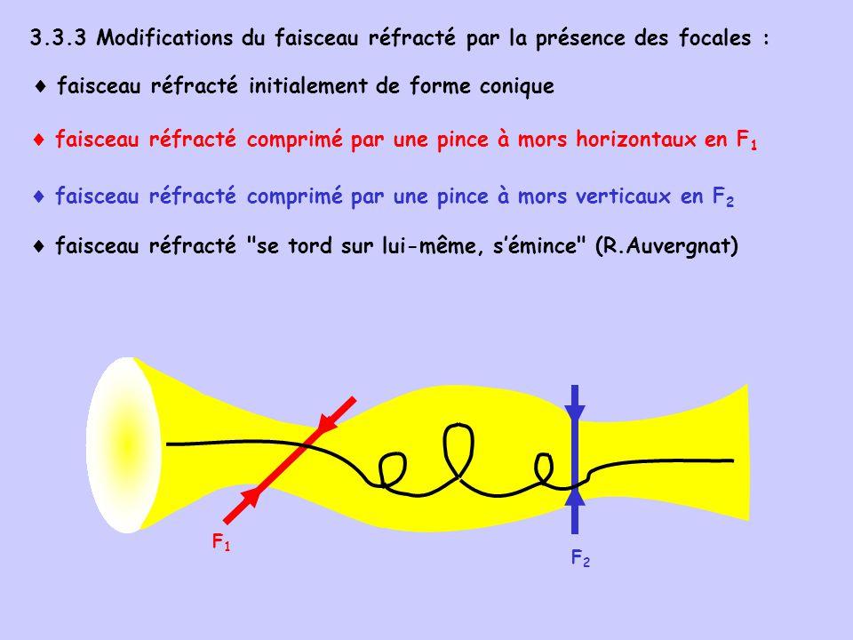 3.3.3 Modifications du faisceau réfracté par la présence des focales : faisceau réfracté initialement de forme conique faisceau réfracté comprimé par