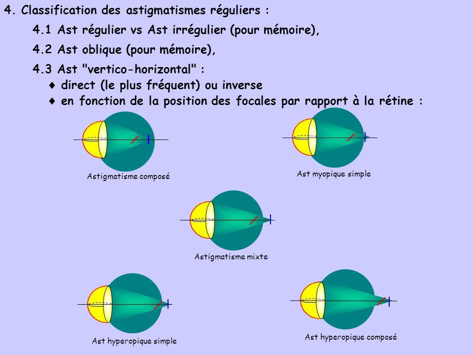 4. Classification des astigmatismes réguliers : 4.1 Ast régulier vs Ast irrégulier (pour mémoire), 4.2 Ast oblique (pour mémoire), 4.3 Ast