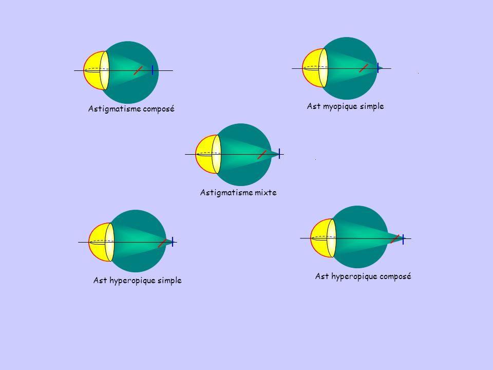Ast hyperopique simpleAst hyperopique composé Astigmatisme mixteAst myopique simpleAstigmatisme composé