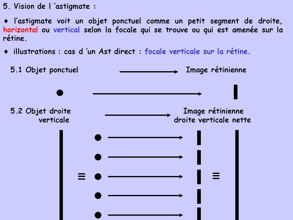 5. Vision de l astigmate : lastigmate voit un objet ponctuel comme un petit segment de droite, horizontal ou vertical selon la focale qui se trouve ou