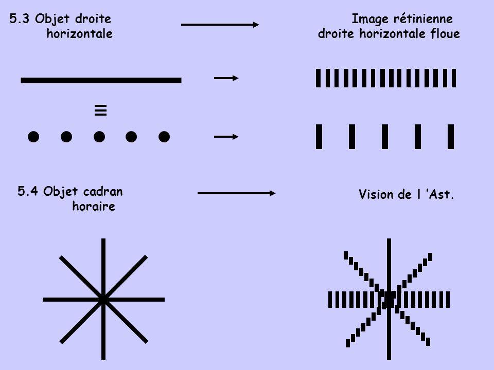 5.3 Objet droite horizontale Image rétinienne droite horizontale floue Vision de l Ast. 5.4 Objet cadran horaire
