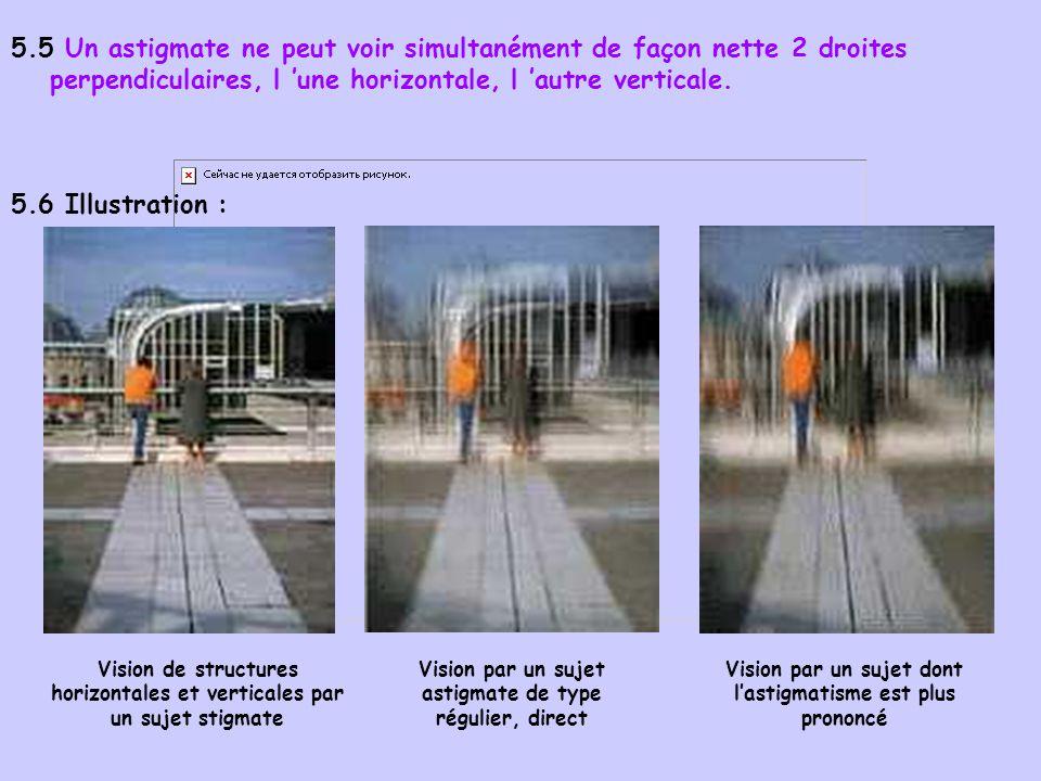 5.5 Un astigmate ne peut voir simultanément de façon nette 2 droites perpendiculaires, l une horizontale, l autre verticale. 5.6 Illustration : Vision