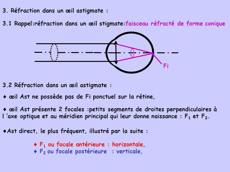 3. Réfraction dans un œil astigmate : 3.1 Rappel:réfraction dans un œil stigmate:faisceau réfracté de forme conique 3.2 Réfraction dans un œil astigma