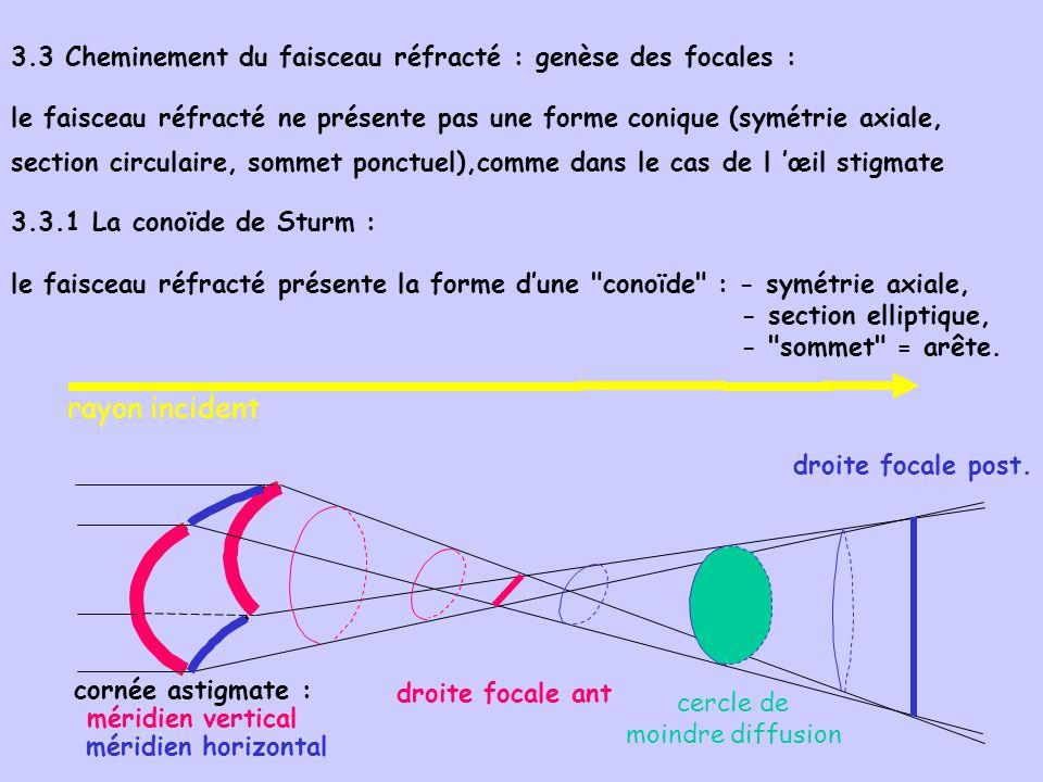 cornée astigmate : méridien vertical 3.3 Cheminement du faisceau réfracté : genèse des focales : le faisceau réfracté ne présente pas une forme coniqu