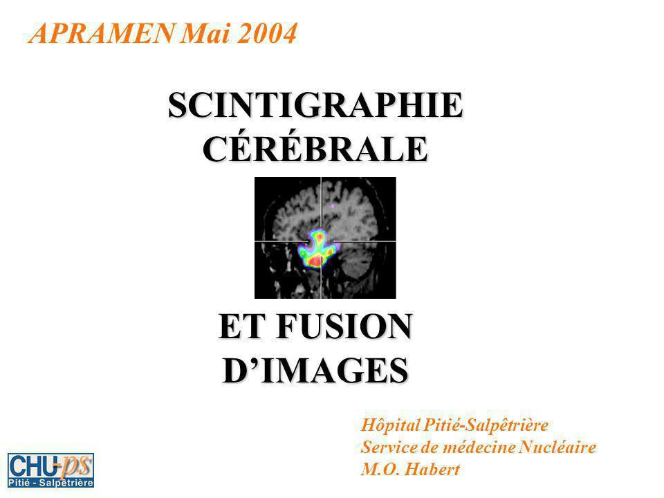 APRAMEN Mai 2004 SCINTIGRAPHIE CÉRÉBRALE ET FUSION DIMAGES Hôpital Pitié-Salpêtrière Service de médecine Nucléaire M.O.