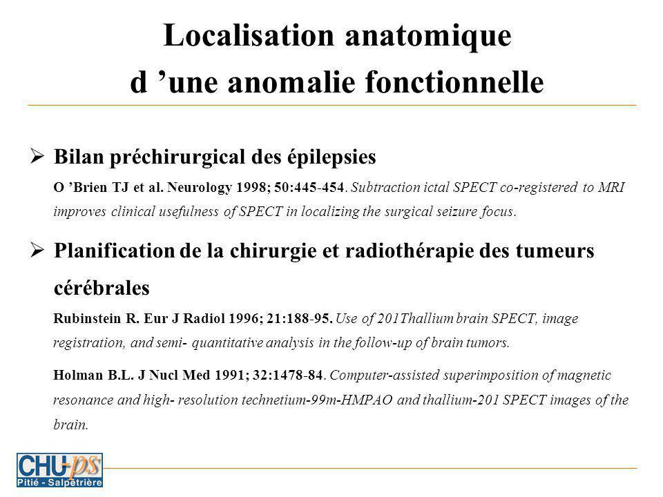 Localisation anatomique d une anomalie fonctionnelle Bilan préchirurgical des épilepsies O Brien TJ et al.