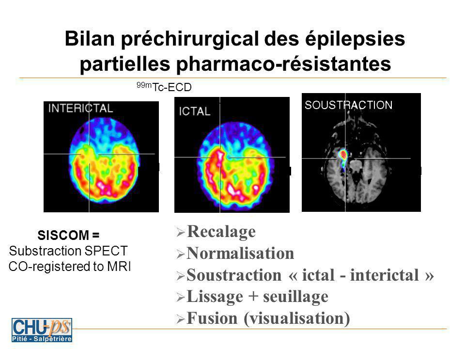Bilan préchirurgical des épilepsies partielles pharmaco-résistantes Recalage Normalisation Soustraction « ictal - interictal » Lissage + seuillage Fusion (visualisation) 99m Tc-ECD SISCOM = Substraction SPECT CO-registered to MRI