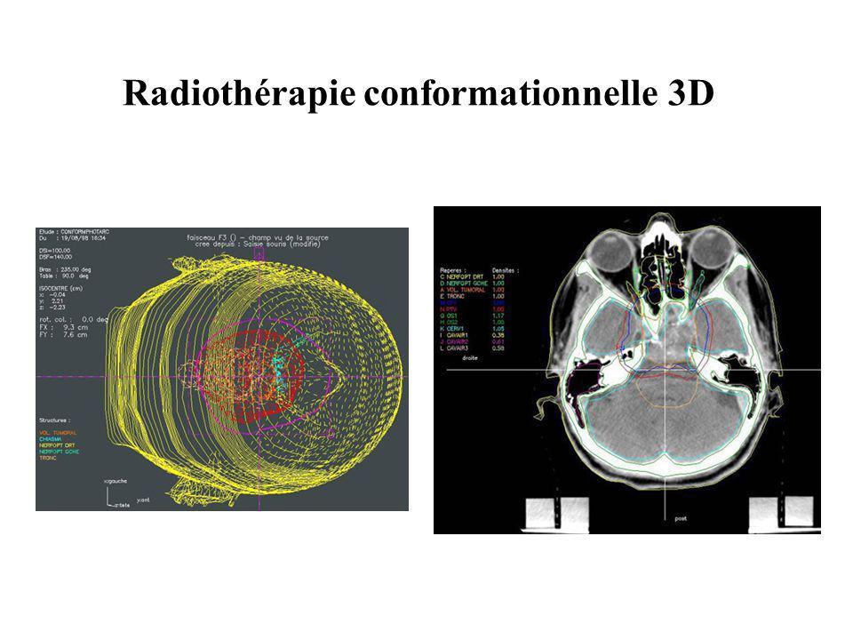 Radiothérapie conformationnelle 3D