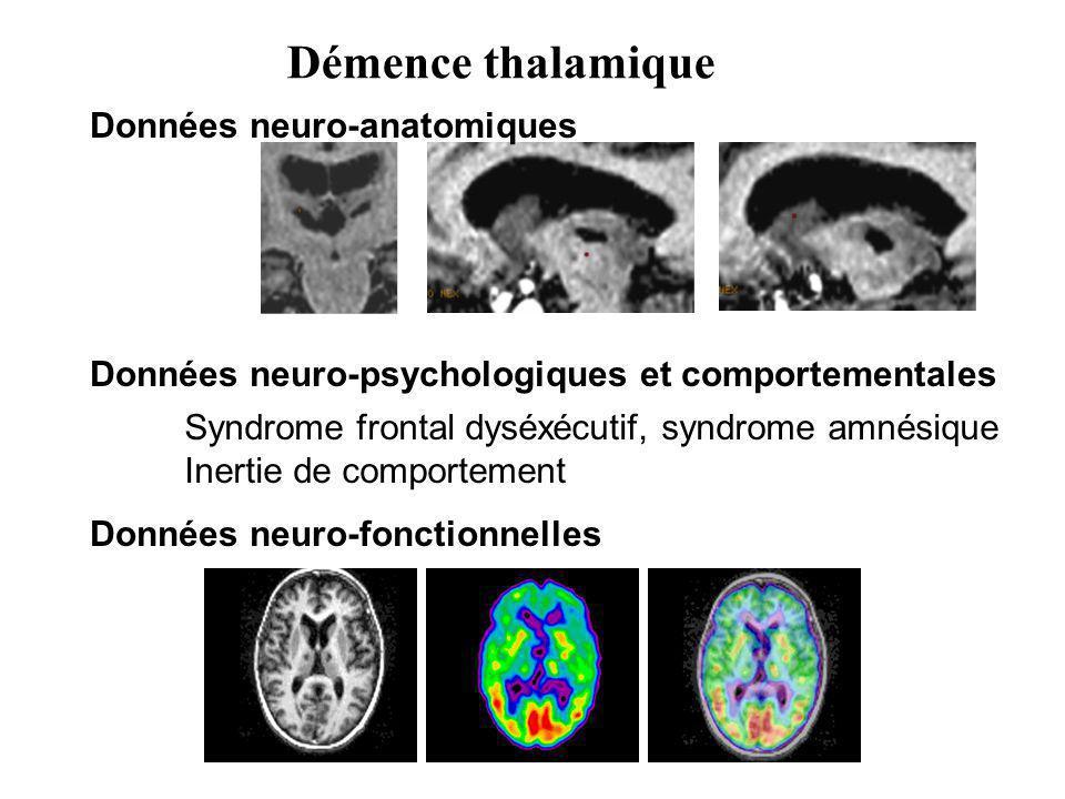 Données neuro-anatomiques Données neuro-psychologiques et comportementales Données neuro-fonctionnelles Démence thalamique Syndrome frontal dyséxécutif, syndrome amnésique Inertie de comportement