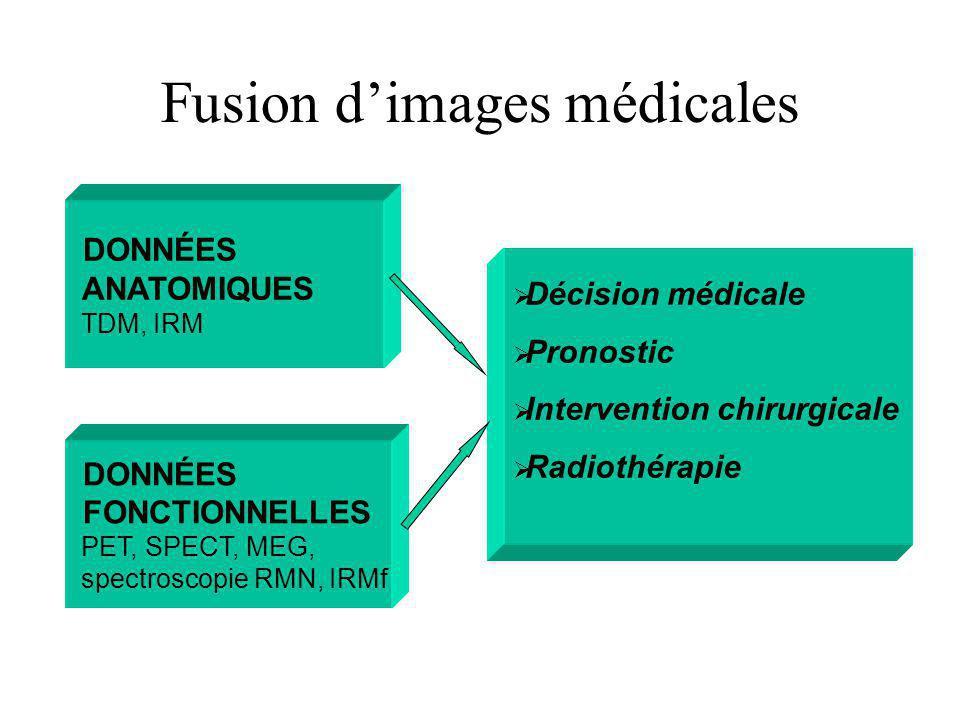 Fusion dimages médicales DONNÉES ANATOMIQUES TDM, IRM Décision médicale Pronostic Intervention chirurgicale Radiothérapie DONNÉES FONCTIONNELLES PET, SPECT, MEG, spectroscopie RMN, IRMf
