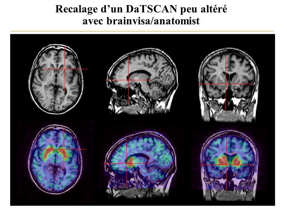 Recalage dun DaTSCAN peu altéré avec brainvisa/anatomist