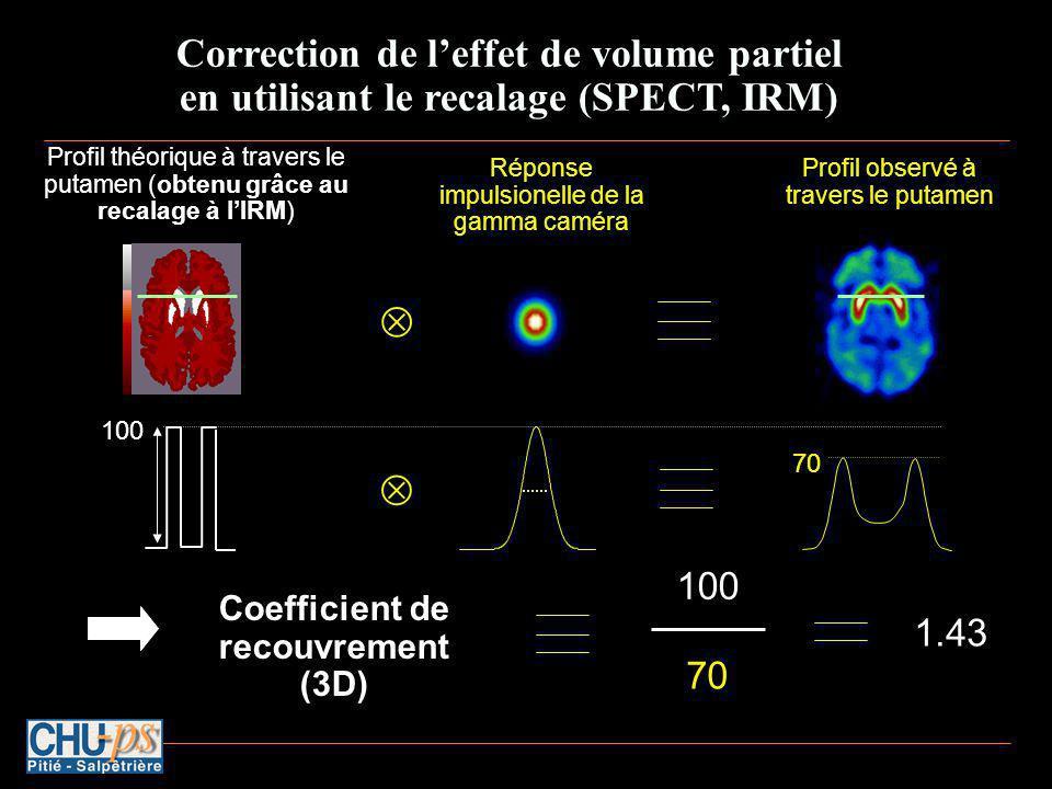 Correction de leffet de volume partiel en utilisant le recalage (SPECT, IRM) Profil observé à travers le putamen Profil théorique à travers le putamen (obtenu grâce au recalage à lIRM) Réponse impulsionelle de la gamma caméra 100 70 Coefficient de recouvrement (3D) 100 70 1.43