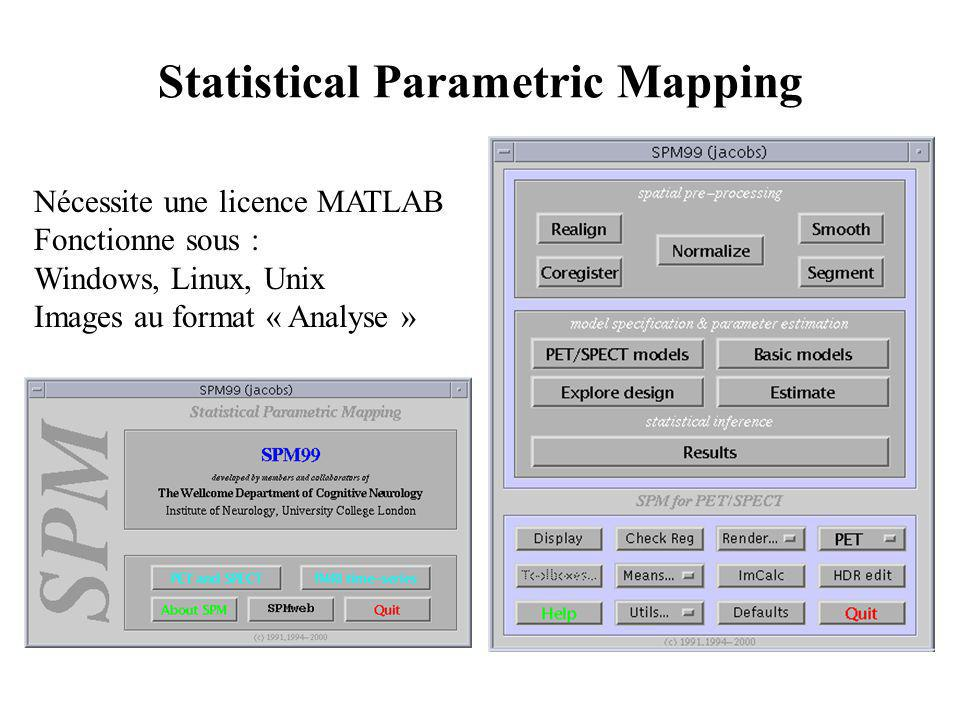 Statistical Parametric Mapping Nécessite une licence MATLAB Fonctionne sous : Windows, Linux, Unix Images au format « Analyse »