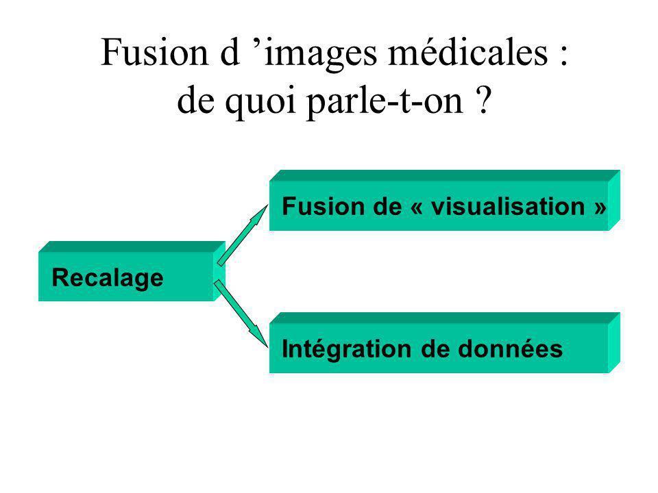 Fusion d images médicales : de quoi parle-t-on .