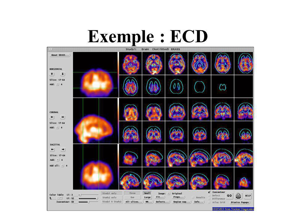 Exemple : ECD